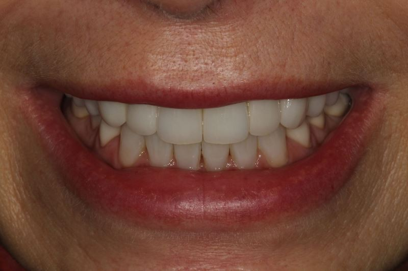Smile Makeovers, Smile Makeovers, St Andrews Dental Care - Fife, St Andrews Dental Care - Fife